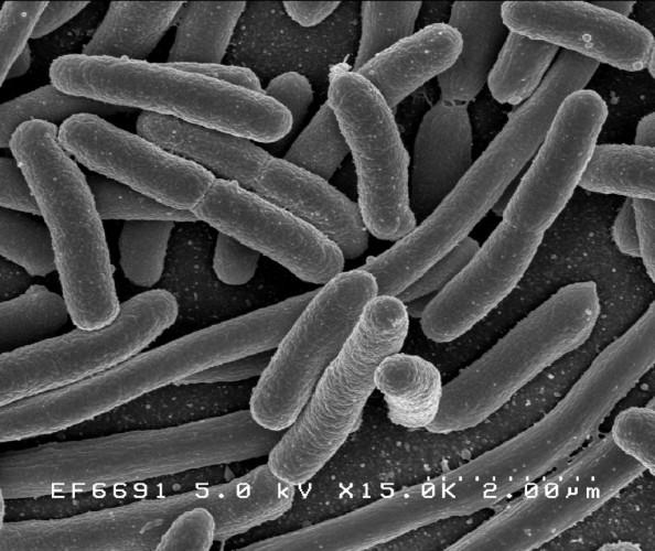 Bakteria E.Coli Fot. Udostępniona przez CDC