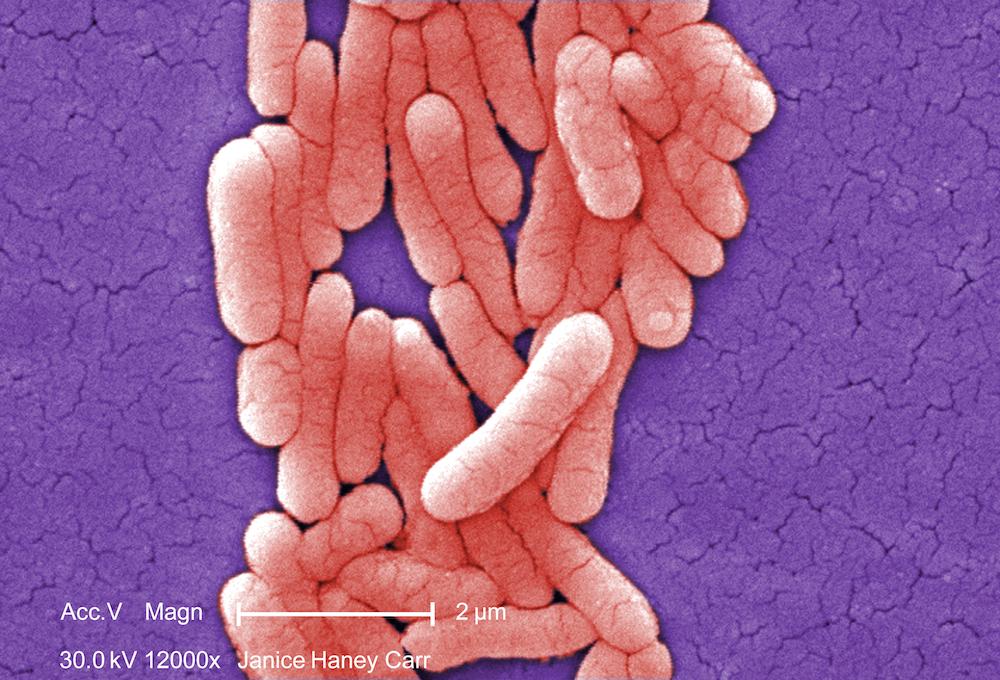 Uzdatnianie wody 101: Bakterie